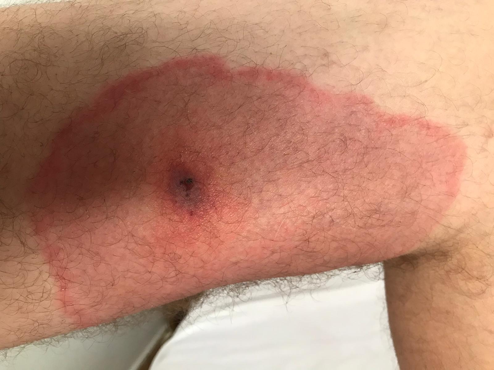 Casi pierde la pierna por una picadura de araña violín