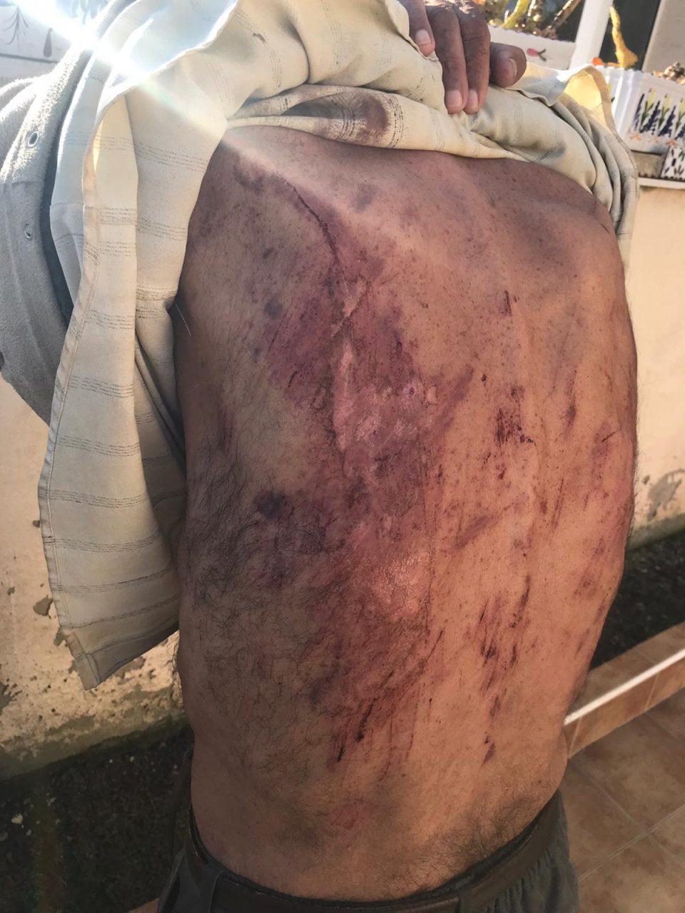 Brutal agresión a un anciano en Torrevieja 6