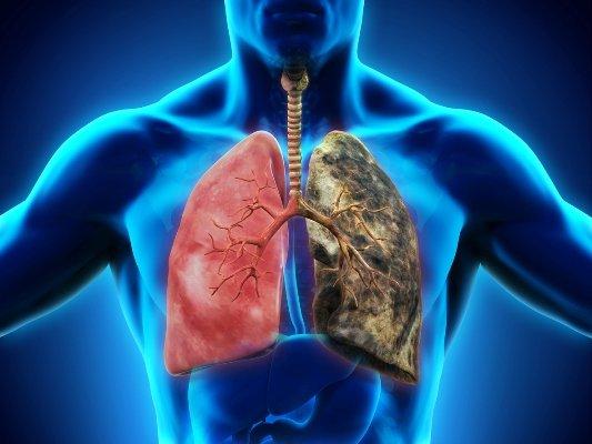 El tabaco disminuye más de una década la esperanza de vida de un fumador 6